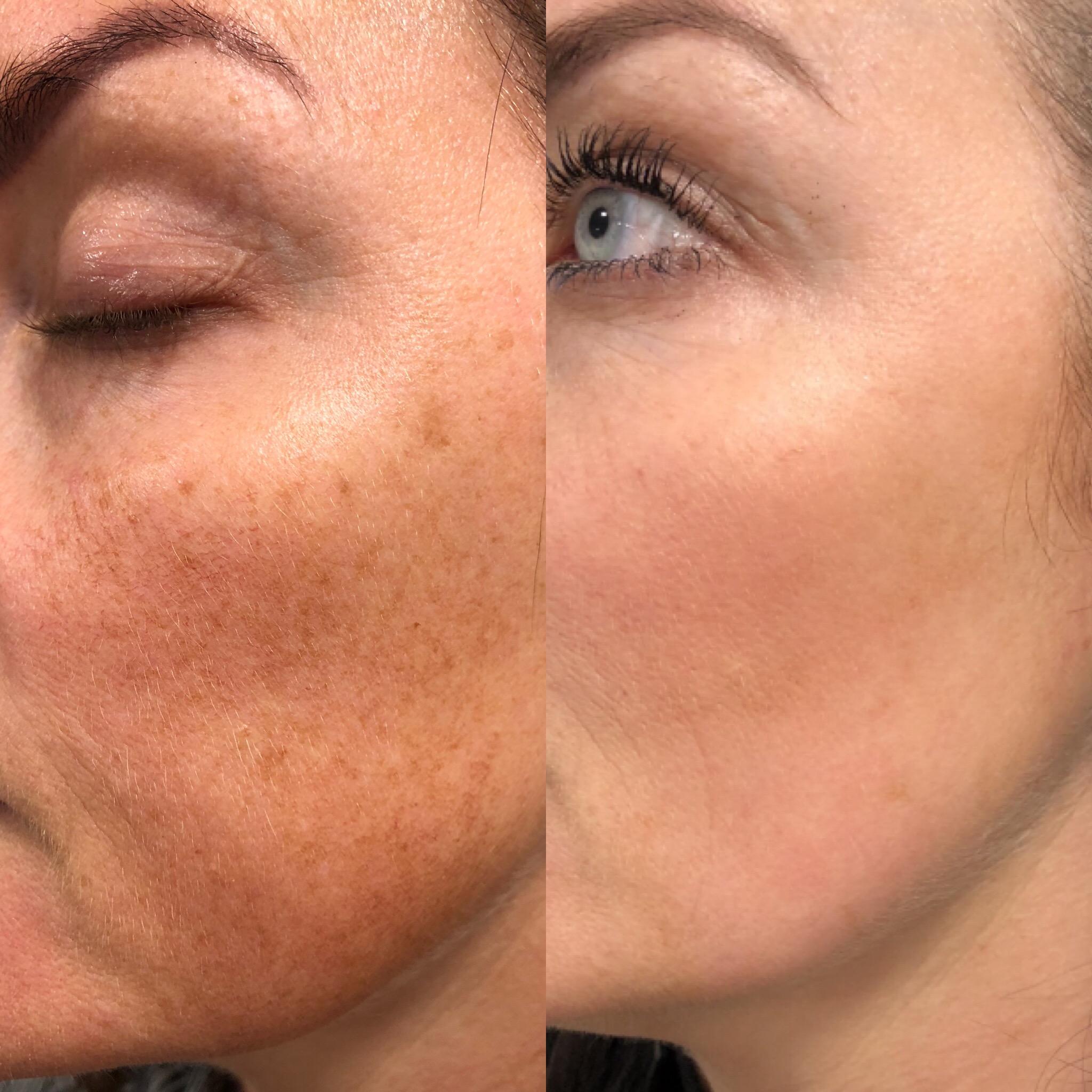behandling af pigmentforandringer i ansigtet
