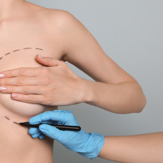 Doctor drawing marks on female breast for cosmetic surgery opera
