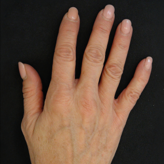 Profhilo-hands-1-After