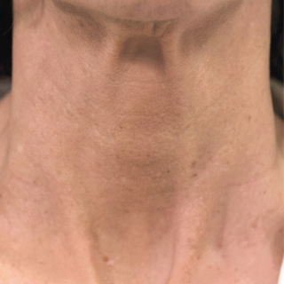 Profhilo-neck-1-After