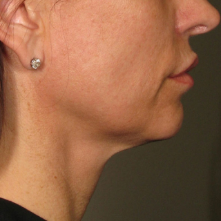 Ultherapy-Hals-AFTER