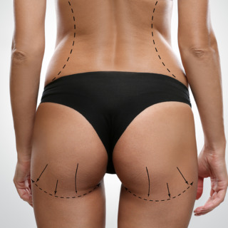 Young female body with marks for plastic operation, gray backgro