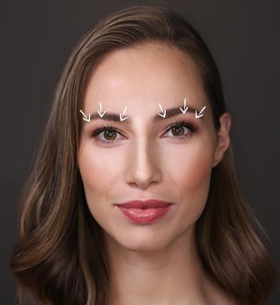 øvre-Ansigt_Kvinde_Front__Neutral_4-med-streger