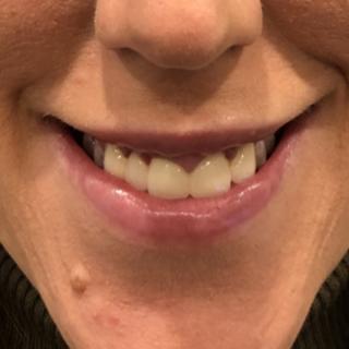 C_Gummy Smile_4EFTER